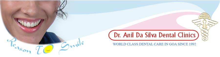 periodontics gum surgeries in goa, Dentist in Goa, Dr. Anil da Silva provides world class dental care, dentistry in goa, dental clinic in calangute porvorim goa