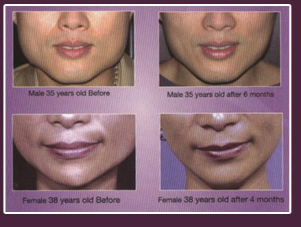 botox in goa india , BOTOX INJECTIONS, dermal fillers, sergial facial lifts