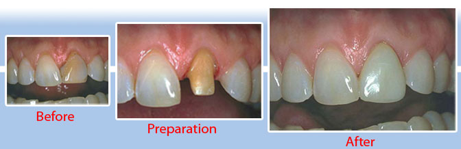 crown and bridge world class dentistry in goa