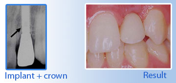 implant crown in goa