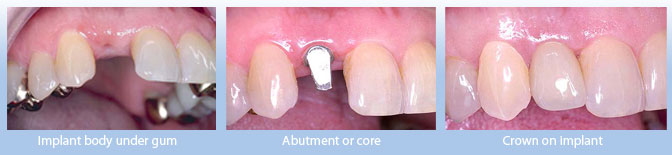 implant body under gum, abutent or core, crown on implant