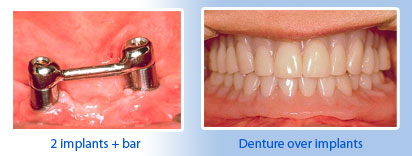 implant plus bars, dentures over implants