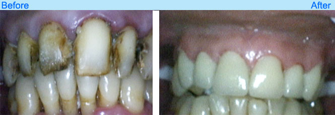 world class dental services like metal free crown in goa