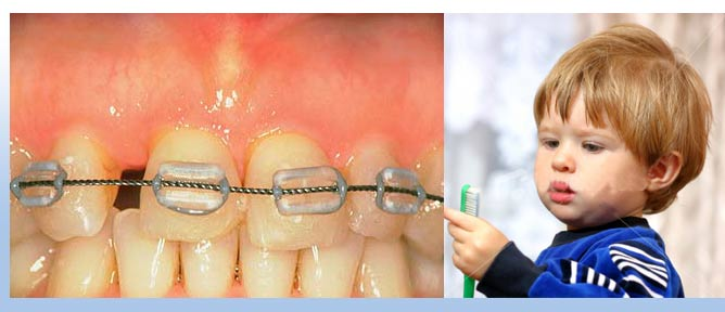 Orthodontics and Pediatric Dentistry in goa, Dentist in Goa, Dr. Anil da Silva provides world class dental care, dentistry in goa